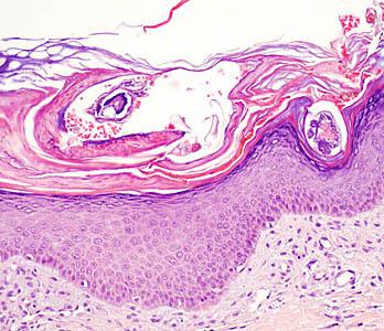 Avances en el tratamiento de la escarbosis